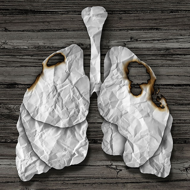 lung cancer symptoms and signs