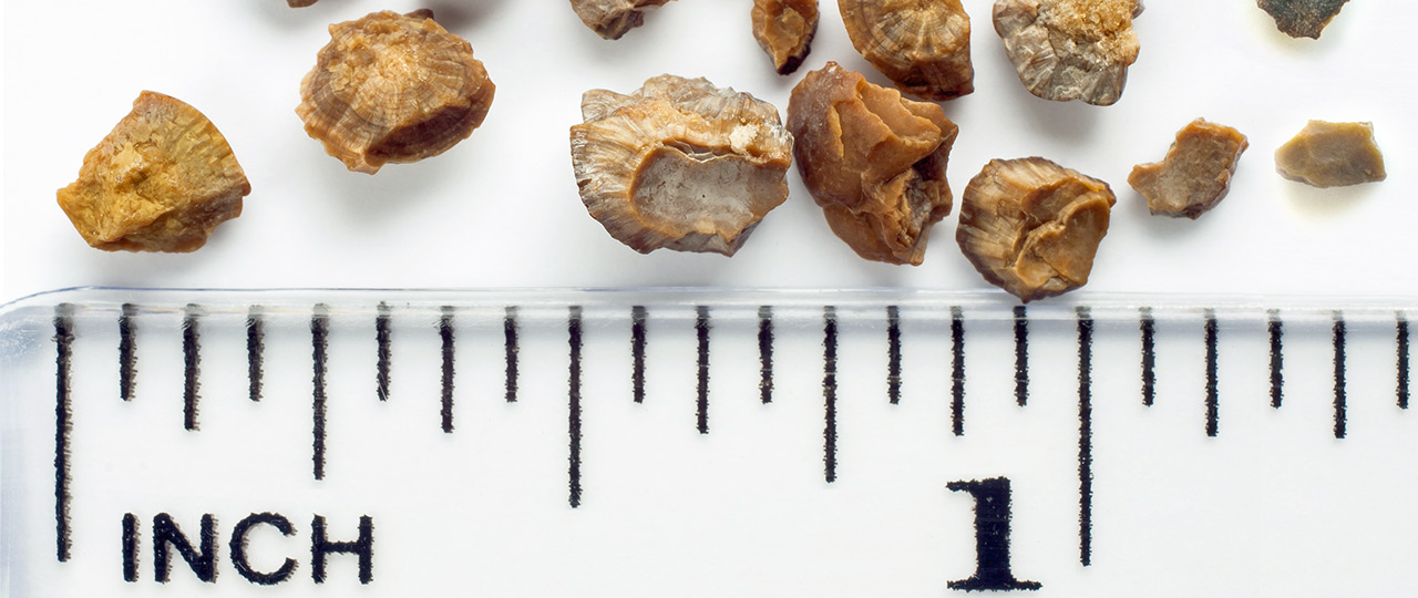 Kidney Stones South